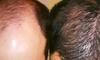 Pěstujte vlasy o 67%