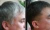 Šedivé vlasy?Vědci v šoku
