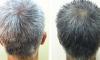 Zastavte šedivění vlasů